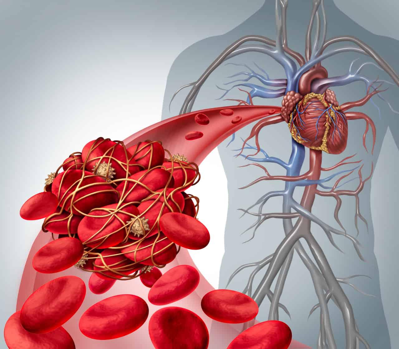 Vitamin K Mangel Ursachen Symptome Risikogruppen Neugeborene Langzeit Einnahme bestimmter Medikamente Blutungen der Organe Hirnblutungen Gabe von Vitamin K Tropfen Osteoporose Gefäßverkalkung Herzprobleme Knochenschwund Blutgerinnungsstörungen Vitaminversorgung Leber Zufauhr als Nahurngsergänzung Knochenbildung Anwendung eines hochdosierten Vitamin K Ergänzungspräparats ungesunde Ernährung Darmflora mit zu wenig positiven Darmbakterien Vitamin K Spiegel Leberkrankheiten Mukoviscidose Quick Wert Quickwert